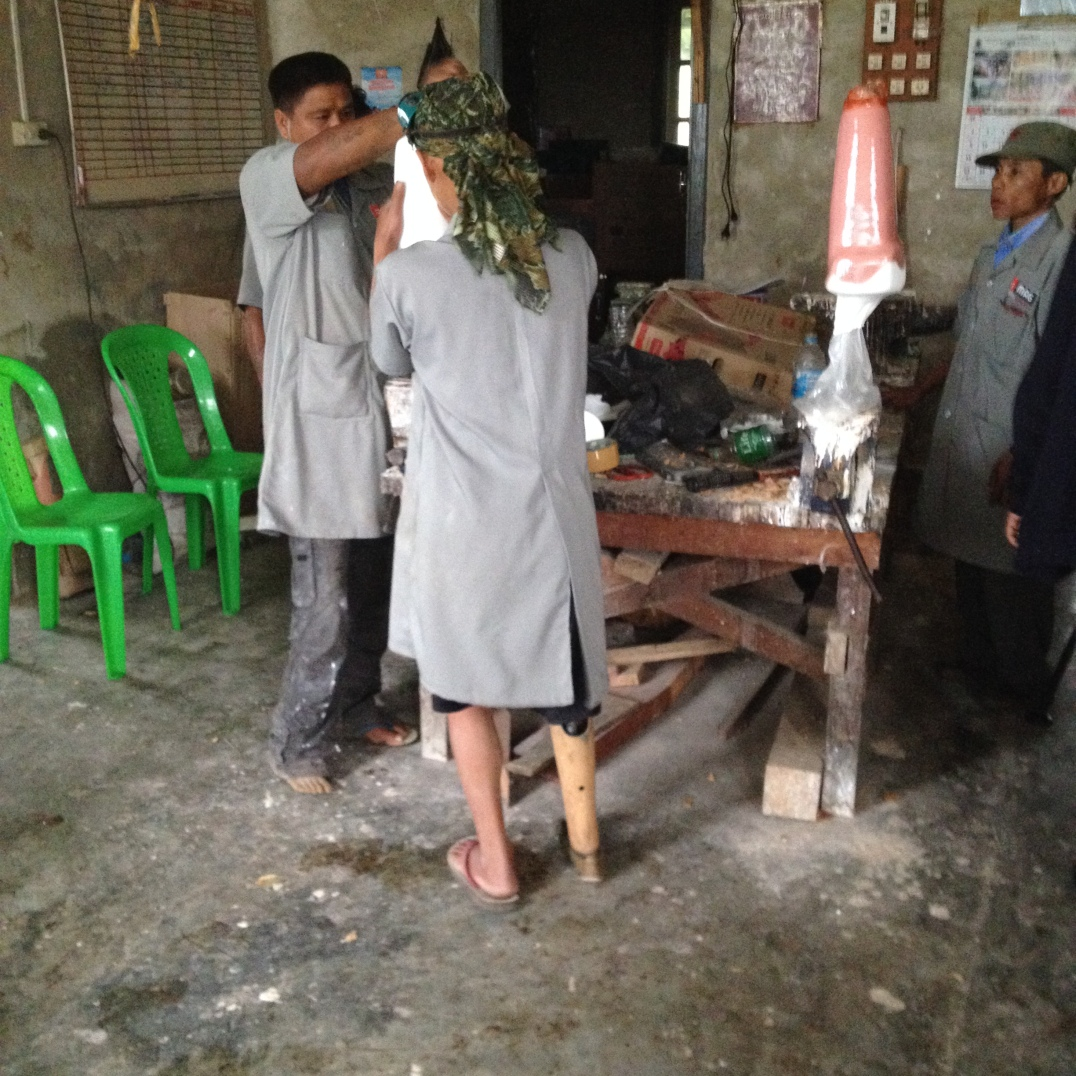 Impressive orthopedic workshop in Kayah State to assist survivors of landmines